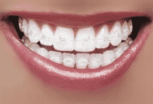 Example of clear braces - Mayhill Orthodontics