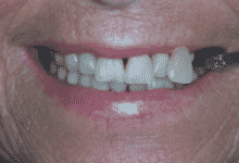 tooth whitening monmouth