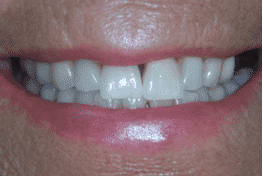 tooth whitening monmouth 2
