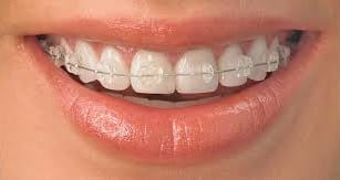 Private Orthodontic Care