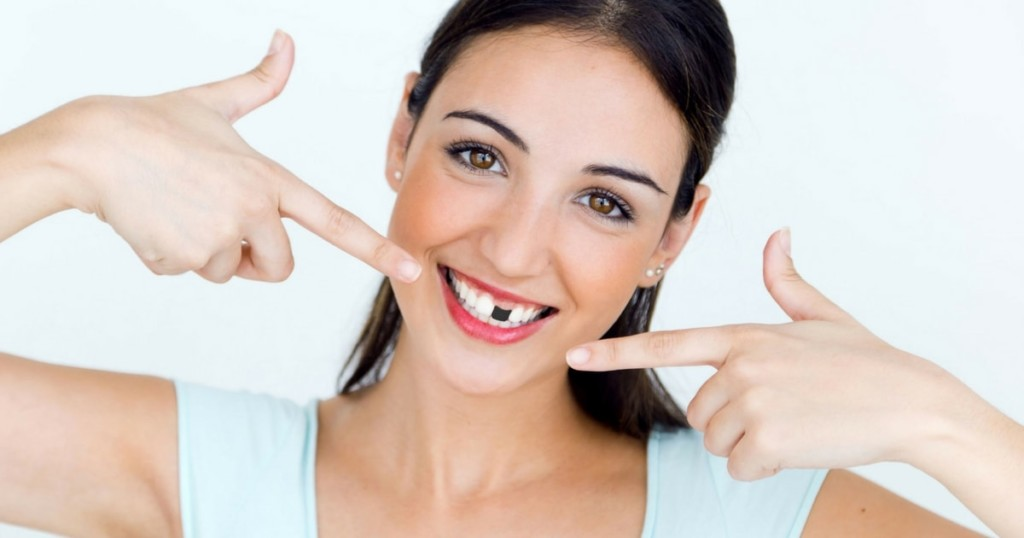 Why Should We Replace Missing Teeth?