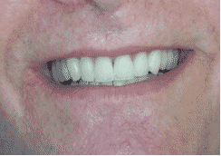 dental implants in hereford