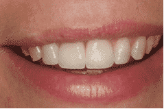 South Wales dental implants