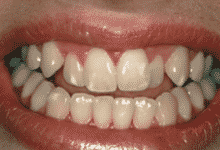 bleaching tray - teeth whitening