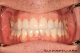 tooth whitening and composite bonding after