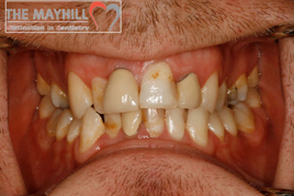tooth whitening and composite bonding before