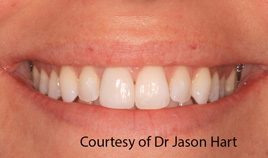 Tooth Whitening and Single Crown After