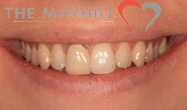 Tooth Whitening and Single Crown Before